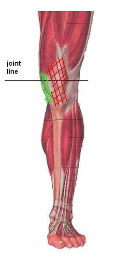 Stretches for medial & anterior knee pain