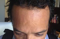 Book Your Arrangement Today Just For Hair Transplant Center In Mexico And Reciate New Look
