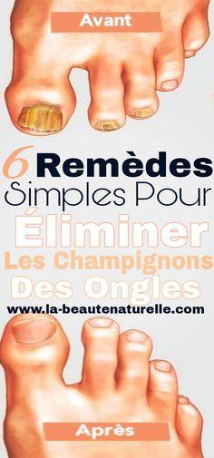 6 Remèdes simples pour éliminer les champignons des ongles #champignons #ongles
