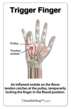"Trigger finger and trigger thumb are painful conditions that cause the fingers or thumb to catch or ""lock"" most often in a bent position. Yeah me!"