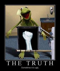 Kermit's x-ray…