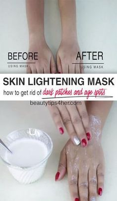 How to get rid of sun tan - Use this home remedy to lighten elbow, knee, neck, hands, face & other parts of your body . This is effective home remedy for dark skin patches & spots. Natural Beauty Remedies, Natural Beauty Tips, Beauty Care, Beauty Skin, Diy Beauty, Dark Patches On Skin, Beauty Hacks Skincare, Beauty Products, Oily Skincare