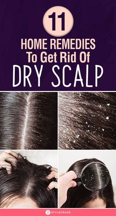 10 Best Home Remedies To Get Rid Of Dry Scalp: Saying that a dry scalp can be irritating is putting it mildly. But you don't have to live with this difficulty all your life. There are many easy ways t Dry Hair Remedies, Dry Scalp Remedy, Home Remedies For Dandruff, Home Remedies For Hair, Tips For Dry Hair, Hair Tips, Itchy Flaky Scalp, Dry Hair Treatment, Hair Treatments