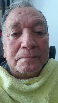 My dad Im going to try my galvanic on him!