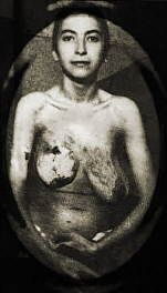 Auschwitz. Mengele's experimentation.