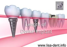 Dental implants are working forward for the purpose of dental treatment into the coming century. Dental fixing offering excellent opportunities to reestablish your teeth, offering secure and safe, very nice solutions for your missing teeth.