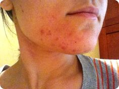 I wasn't going to pin this until I tried it. I did, and it works. Clearing up acne by cleaning your face with oil. I never had terrible acne to begin with, but I had my problem areas and problem times. THIS WORKS. Tried it last night and my pores look EMPTY. No more blackheads, whiteheads or bumps. For real. Try it.