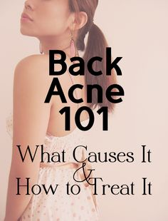 Bacne: great info on how to get rid of it from derms!