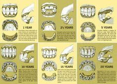 Aging a horse by its teeth...wish i could accurately do this!!!