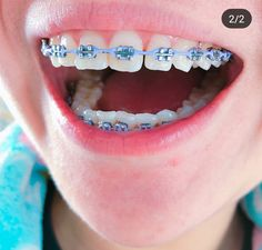 You no longer need to hide your smile anymore! Dental Braces, Teeth Braces, Braces Food, Braces Smile, Dental Care, Braces Retainer, Cute Braces Colors, Braces Tips, Getting Braces