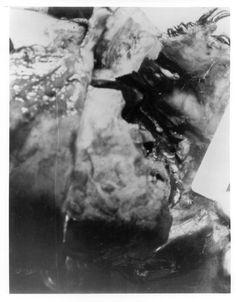JFK Lancer: Autopsy Photos                              …