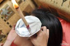670px Use Ear Candles Step 6 300x198 Cara Unik Merawat Kebersihan Telinga Dengan Ear Candle