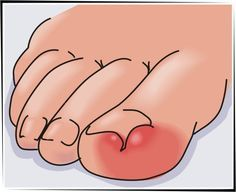 Know your ingrown toenail treatment options! Our guide helps you choose the ingrown toenail treatment that is right for you. Ingrown Toenail Treatment, Ingrown Toe Nail, Healthy Nails, Healthy Skin, Skin Care Remedies, Skin Firming, Beauty Industry, Toe Nails, Skin Care Tips