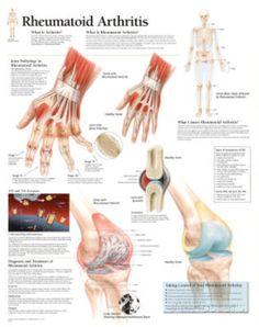 Rheumatoid Arthritis Educational Chart Poster Print at AllPosters.com