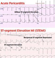 EKG STEM vs pericarditis