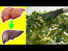 Pietruszka i 2 ząbki czosnku - cud dla wątroby - wiem - YouTube Liver Detoxification, Seaweed Salad, Healthy, Ethnic Recipes, Youtube, Cud, Medical, Therapy, Health