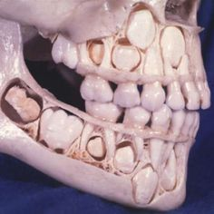 A Child's Skull Before Losing Baby Teeth.  50 Incredible Pictures That Might Teach You Something