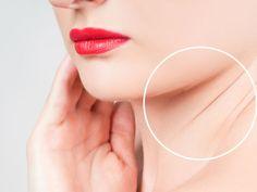 Remedios caseros para eliminar las arrugas del cuello