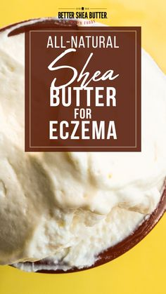 Due to high pollutants and allergens, the number of eczema victims is on the rise. If you can't seem to rid the pain, it is time to turn to a natural source of healing such as shea butter for eczema symptoms. It is easy to say that eczema is frustrating. It is painful, itchy, embarrassing, and persistent. What's even worse is that most skin care products tend to dry out your skin and make the symptoms worse. Natural Hair Growth, Natural Hair Styles, Natural Skin Moisturizer, Eczema Symptoms, Unrefined Shea Butter, Natural Treatments, Healing, Skin Care