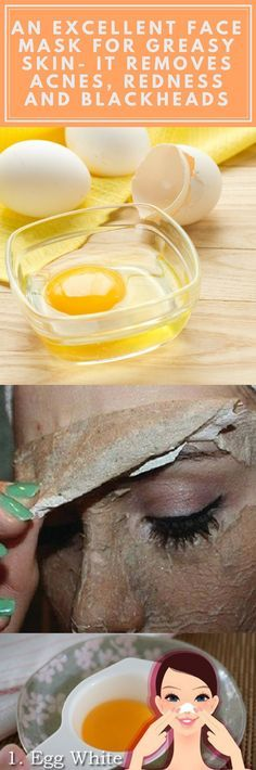 Skin Care DIY Illustration Description An Excellent Face Mask For Greasy Skin- It Removes Acnes Redness And Blackheads -Read Face Mask For Redness, Face Skin, Greasy Skin, Remove Acne, Homemade Face Masks, Tips Belleza, Belleza Natural, Le Point, Skin Treatments