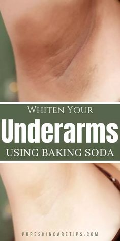 How To Whiten Underarms Fast and Naturally – Herbal Medicine Book Deodorant, How To Whiten Underarms, How To Lighten Armpits, Whiten Skin, Armpit Whitening, Dark Armpits, Smelly Armpits, Armpits Smell, Medicine Book