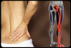 Sciatica Symptoms Low back pain that radiates to the hip, buttock, and down a lower extremity is the most common symptom of sciatica. Sometimes sciatica pain worsens with bending at the waist, coughing, sitting, or sneezing. Sciatica can also cause tingling, numbness, or weakness of the leg. Sciatica symptoms can occur rapidly and persist for weeks.