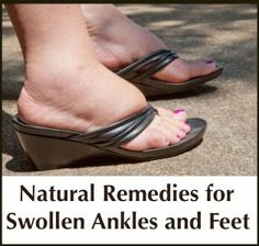 Natural Remedies for Swollen Ankles and Feet
