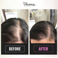 Before After Results Glaveno Hair Regrowing Spray