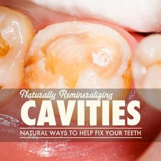 Heal Cavities Naturally through Remineralization