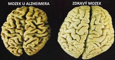 These 3 Vitamins Stop Brain Loss And Prevent Alzheimer's Disease Alzheimers, Alzheimer's Brain, Brain Health, Healthy Brain, Brain Food, Dental Health, Healthy Food, The Cure, Stress