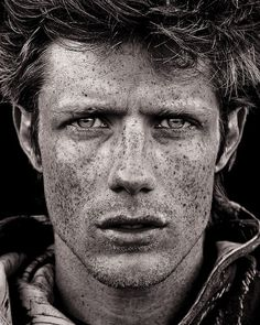 Freckles. my son has tons. this looks like eric stoltz. yum