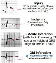 EKG injuries. Used to be monitor tech in an ICU.
