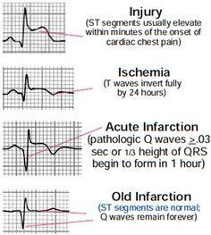 innovative design 49ca6 316ba EKG injuries. Used to be monitor tech in an ICU. Ekg Interpretation, Cardiac