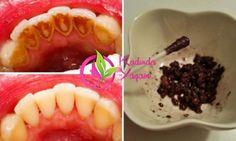 Ceviz Kabuğu İle evde dişbeyazlatma kürü Temel ağız hijyeni çok önemlidir: diş minesine bakılmadığında tartar oluşmuşsa ve bu tartarlar temizlenmezse, enfeksiyonlar oluşur ve iltihaplı diş hastalıkları ortaya çıkabilir. Bu yöntemle evinizde kolayca tartarları temizleyebileceksiniz. Üstelik sadece ceviz kabuğu kullanarak. Ceviz Kabuğu İle evde dişbeyazlatma kürümalzemeler Evde tartar nasıl temizlenir – 40 gr ceviz kabuğu – …