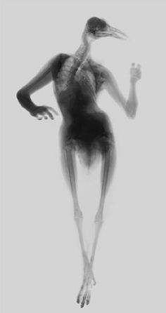 Hybrid X-ray images of bird people and octopus women