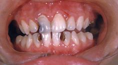 Common Mouth Issues: Cavities Read an ADA article on the common mouth issues.