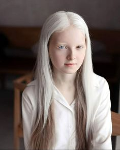 A girl with albinism and heterochromia - pics Modelo Albino, Heterochromia Eyes, Albino Girl, White Blonde Hair, Dark Hair, Red Hair, Brown Hair, Pale Skin, Pretty People