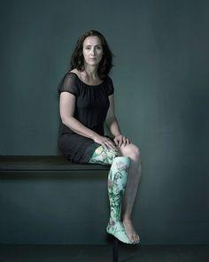 Floral Porcelain Leg | The Alternative Limb Project