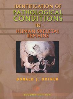 Identification of Pathological Conditions in Human Skeletal Remains, Second Edition by Donald J. Ortner