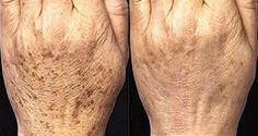 The Best Homemade Exfoliating Peeling of the Age Spots on Your Hands - Healthy Life Vision Homemade Exfoliating Scrub, Exfoliating Peel, Age Spots On Face, Spots On Legs, Age Spot Removal, Natural Exfoliant, Lighten Skin, Dry Hands, Tips Belleza
