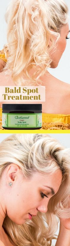 Scalp Spot Cream