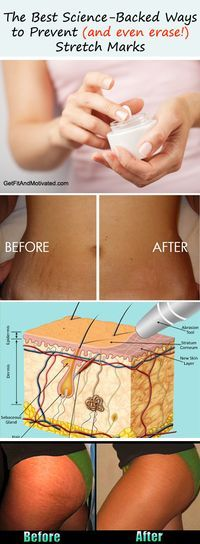 The Best Science-Backed Ways to Prevent (and even erase!) Stretch Marks