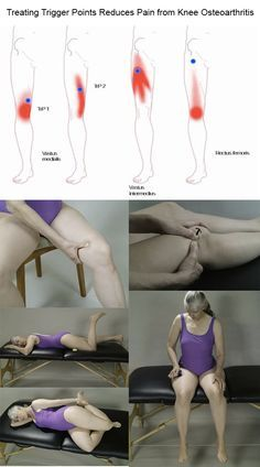 Treating Trigger Points Reduces Pain from Knee Osteoarthritis
