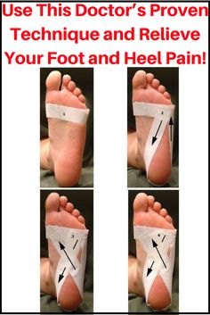 Torment in the base of the foot can be seriously excruciating particularly on the off chance that you must be on your feet throughout the day. This interminable inconvenience that many individuals experience the ill effects of is called plantar fasciitis. Albeit agonizing, there is no requirement for stress since it is a treatable condition that does not require surgery.