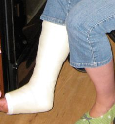 Signs Of Ankle Fracture