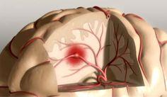 dit is de afbeelding van een herseninfarct. bij een herseninfarct is er een bloedvat is de hersenen verstopt waardoor er niet genoeg zuurstof in de hersenen komt en dit deel van de hersenen afsterft. de symptomen zijn warrig praten, verlamming van het gezicht en de behandeling wordt steeds lastiger hoe later het ontdekt wordt. er wordt meestal een operatie uitgevoerd om de vernauwing minder te maken.