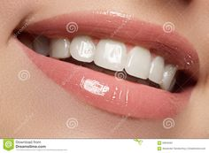 Perfect Smile. Beautiful Natural Full Lips And White Teeth. Teeth ...