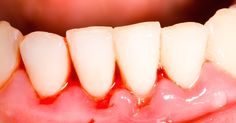 Over half of all Americans over the age of 30 have had gum disease at some point, and this is generally considered the most dangerous oral health problem, short of cancer.
