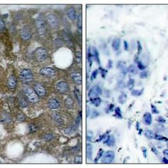 Immunohistochemistry analysis using Rabbit Anti-Hsp27 Polyclonal Antibody (SPC-1263). Tissue: Breast Carcinoma Tissue. Species: Human. Fixation: Formalin fixed paraffin-embedded. Primary Antibody: Rabbit Anti-Hsp27 Polyclonal Antibody (SPC-1263) at 1:1000. The image on the right is treated with the synthesized peptide.
