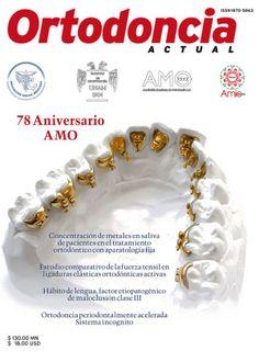 Ortodoncia Actual 35